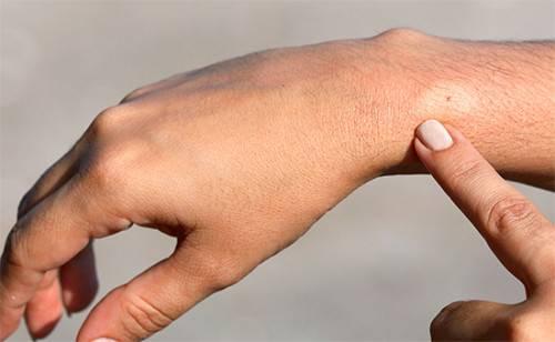 Опухла рука после укуса осы что делать