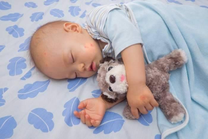 Безопасное средство от комаров для детей