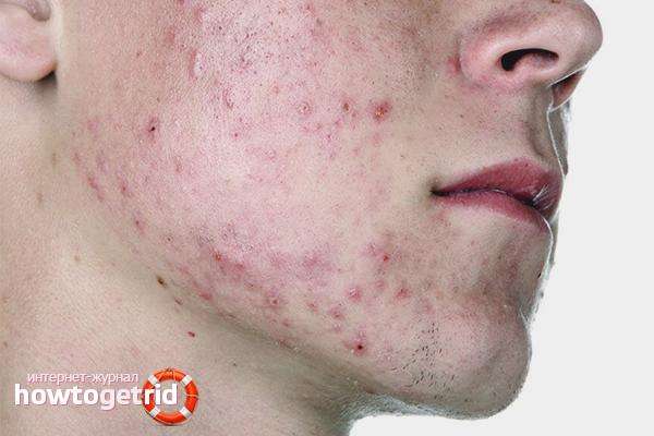 Подкожный клещ у человека на лице лечение