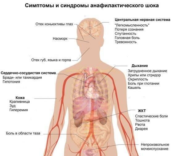 Симптомы и синдромы анафилактического шока