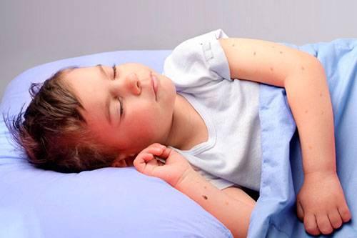 Опасны ли укусы клопов для человека