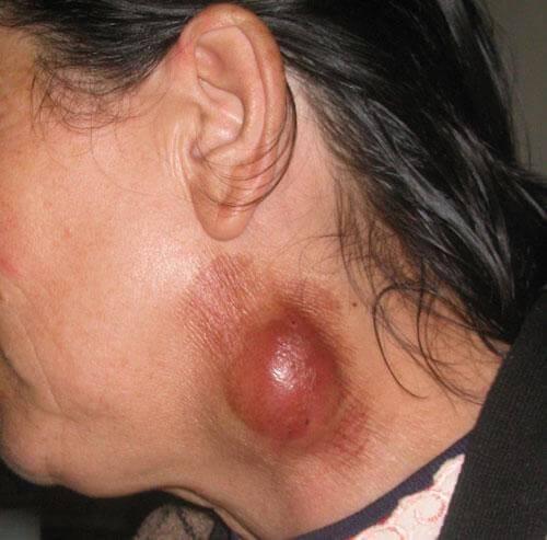 Болит укус клеща