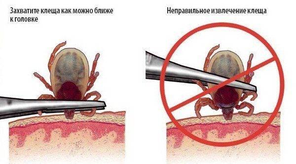 Как вытащить голову клеща если она оторвалась
