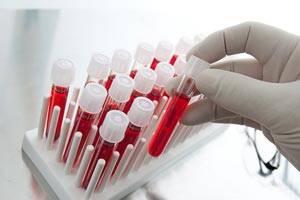 Признаки болезни лайма после укуса клеща