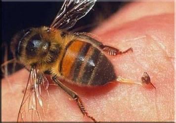 Лекарство от укуса осы