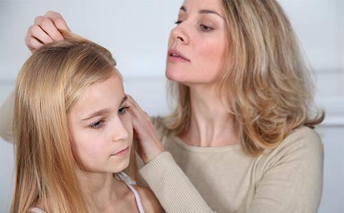 Вши на голове лечение в домашних условиях