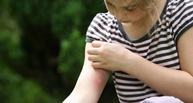 Как спастись от комаров