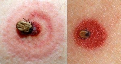 Как выглядит укус клеща на теле человека