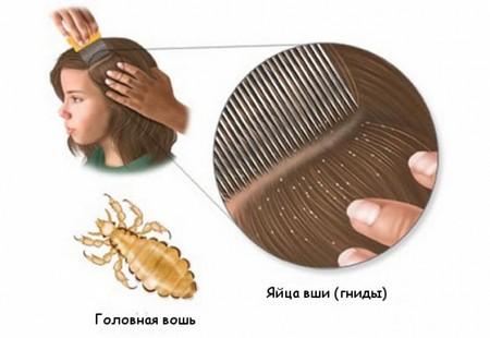 Таблетки от вшей и гнид